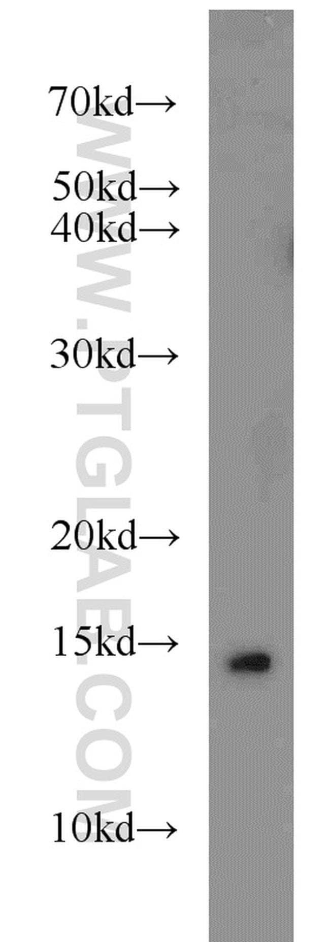 SNRPD3 Rabbit anti-Human, Mouse, Rat, Polyclonal, Proteintech 150 μL; Unconjugated Ver productos