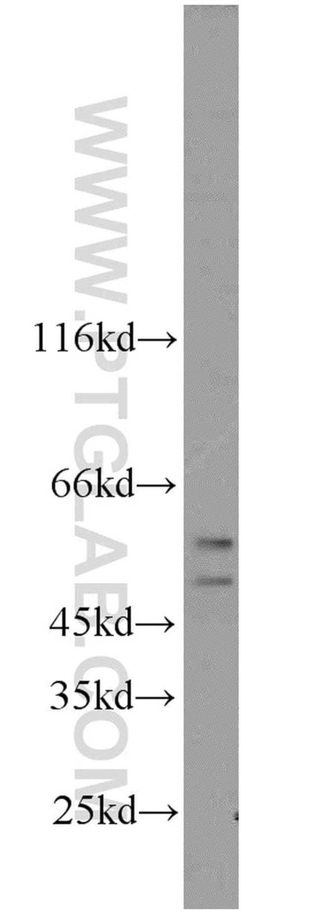 CFLAR/FLIP Rabbit anti-Human, Polyclonal, Proteintech 20 μL; Unconjugated Produkte