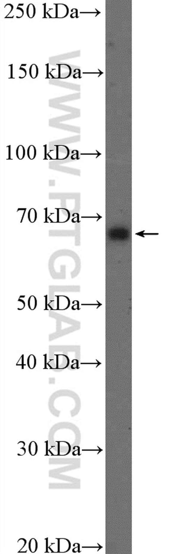 GAD1 Rabbit anti-Human, Mouse, Rat, Polyclonal, Proteintech 20 μL; Unconjugated Produkte