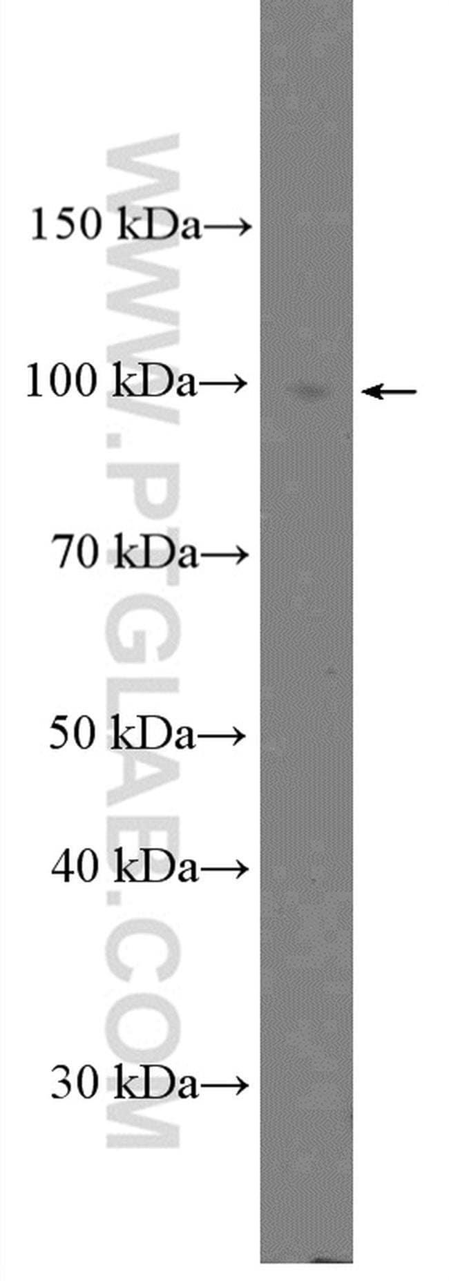 Calpain 3 Rabbit anti-Human, Mouse, Rat, Polyclonal, Proteintech 150 μL; Unconjugated Ver productos