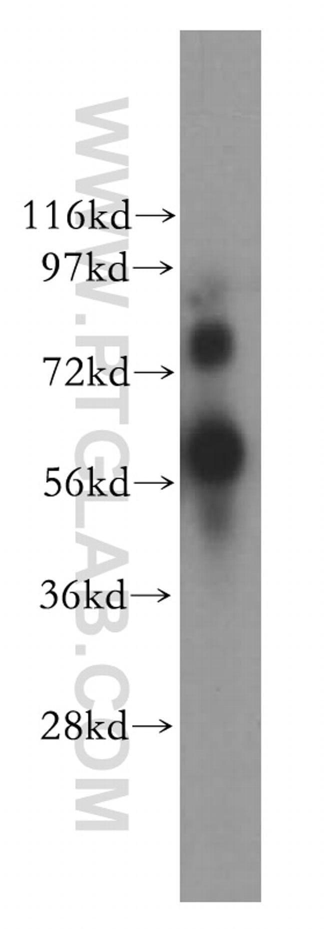 YY1AP1 Rabbit anti-Human, Polyclonal, Proteintech 20 μL; Unconjugated Produkte