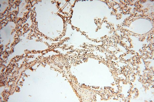 Neurogranin Rabbit anti-Human, Mouse, Rat, Polyclonal, Proteintech 150 μL; Unconjugated Ver productos