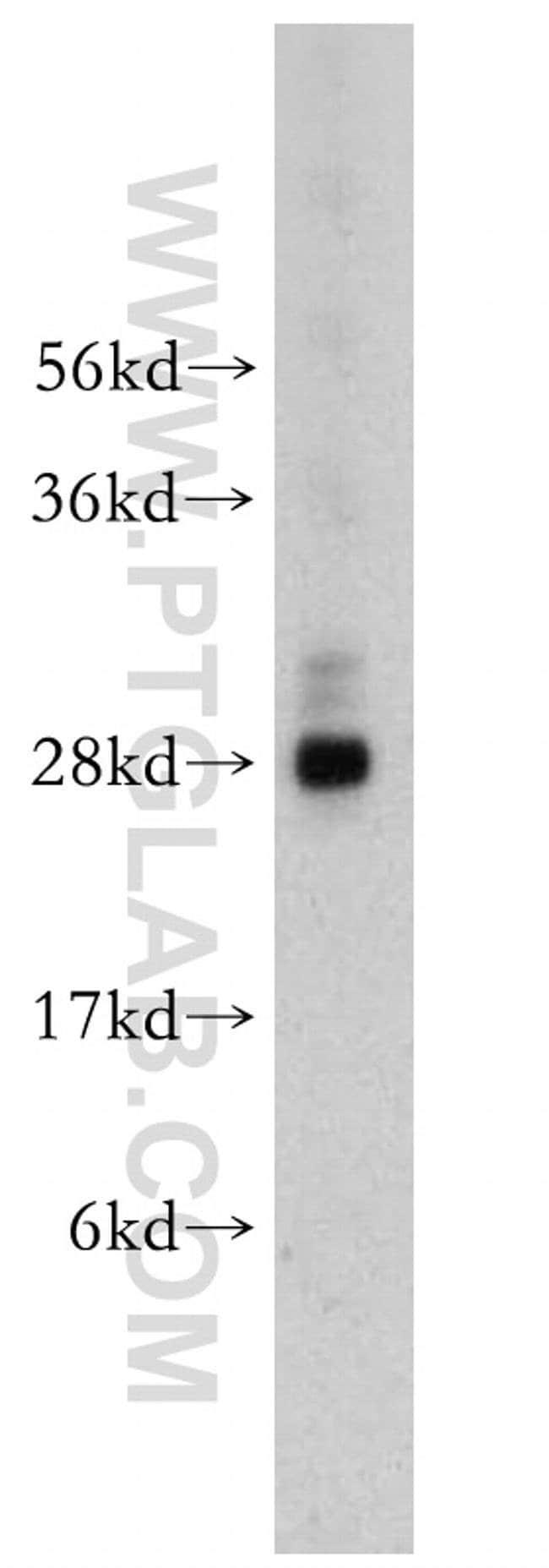 NGFRAP1 Rabbit anti-Human, Mouse, Rat, Polyclonal, Proteintech 150 μL; Unconjugated Ver productos