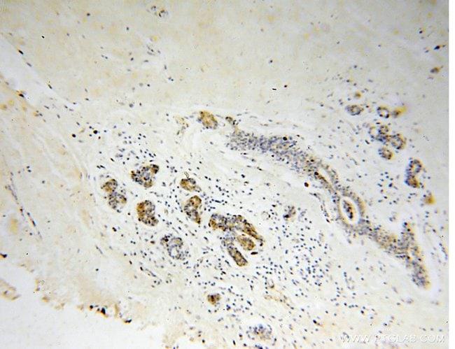 Connexin-32 Rabbit anti-Human, Mouse, Polyclonal, Proteintech 20 μL; Unconjugated Produkte