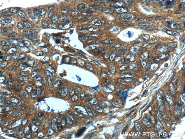 CXCL14 Rabbit anti-Human, Polyclonal, Proteintech 20 μL; Unconjugated Produkte