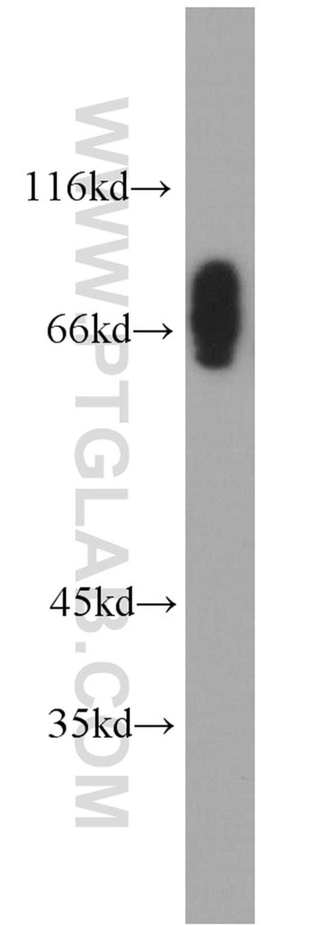 CLINT1 Rabbit anti-Human, Mouse, Rat, Polyclonal, Proteintech 150 μL; Unconjugated Ver productos