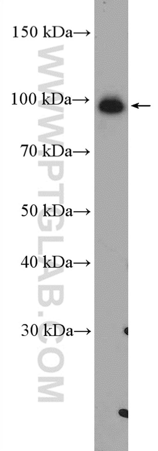 USP5 Rabbit anti-Human, Mouse, Rat, Polyclonal, Proteintech 20 μL; Unconjugated Produkte