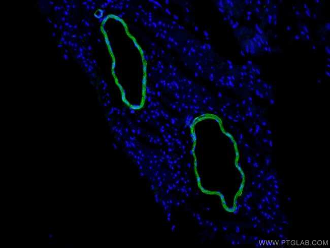 transgelin/SM22 Rabbit anti-Human, Mouse, Rat, Polyclonal, Proteintech 150 μL; Unconjugated Ver productos
