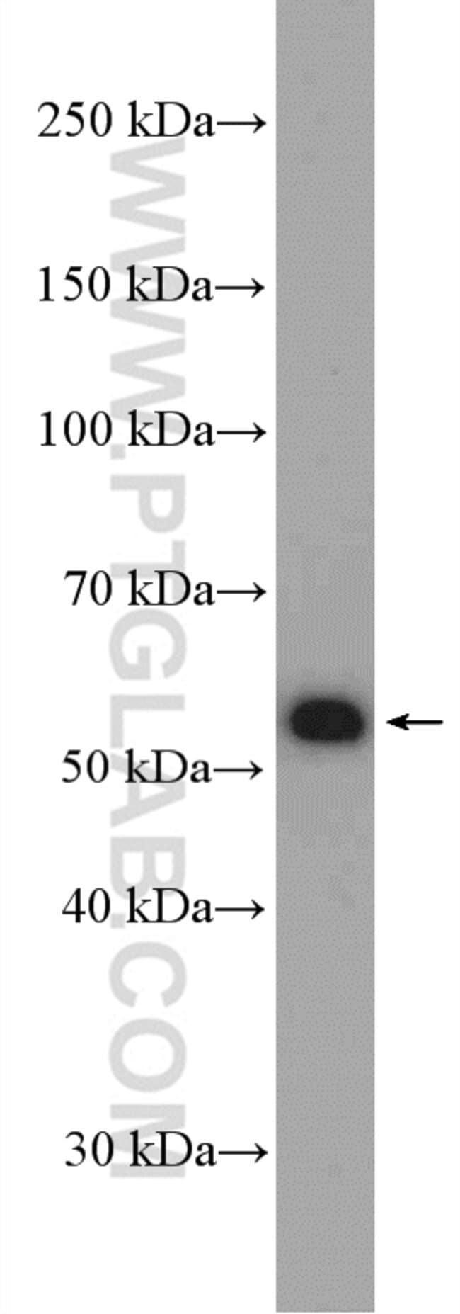 BLK Rabbit anti-Human, Mouse, Rat, Polyclonal, Proteintech 20 μL; Unconjugated Ver productos