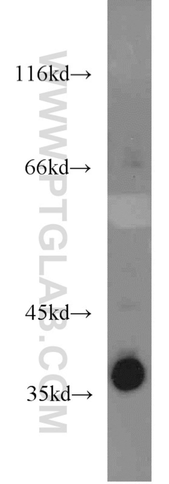 LASP1 Rabbit anti-Human, Mouse, Rat, Polyclonal, Proteintech 20 μL; Unconjugated Ver productos