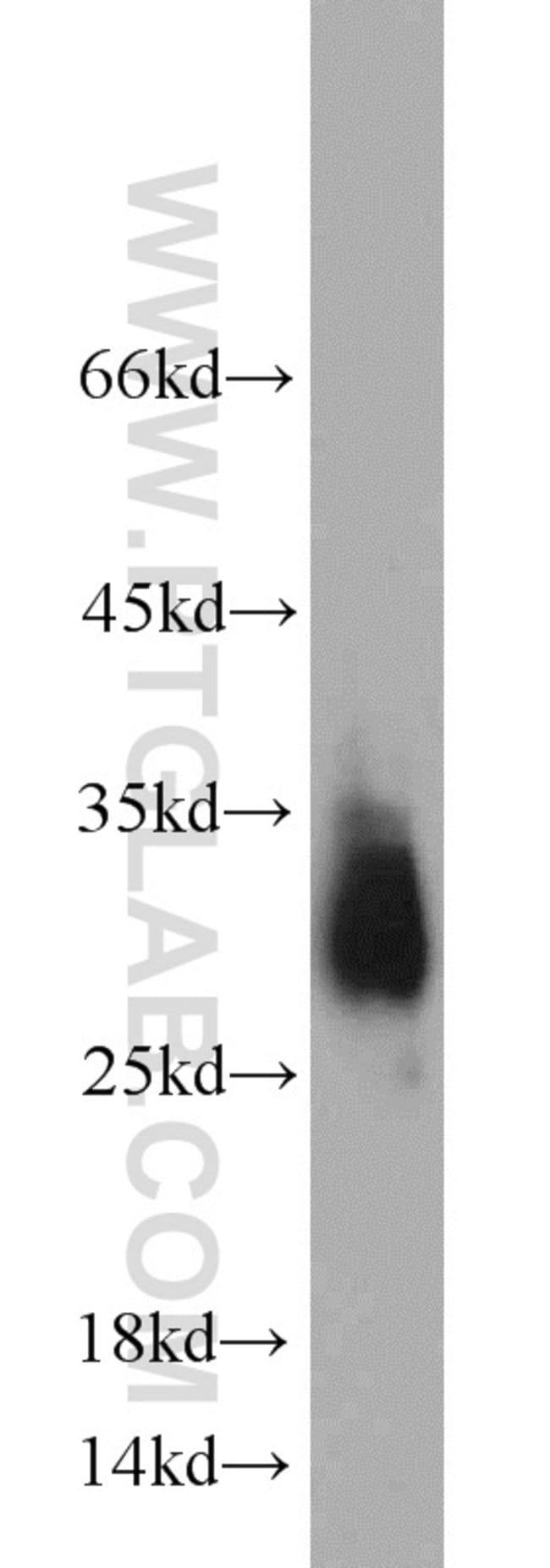 APOD Rabbit anti-Human, Polyclonal, Proteintech 150 μL; Unconjugated Produkte