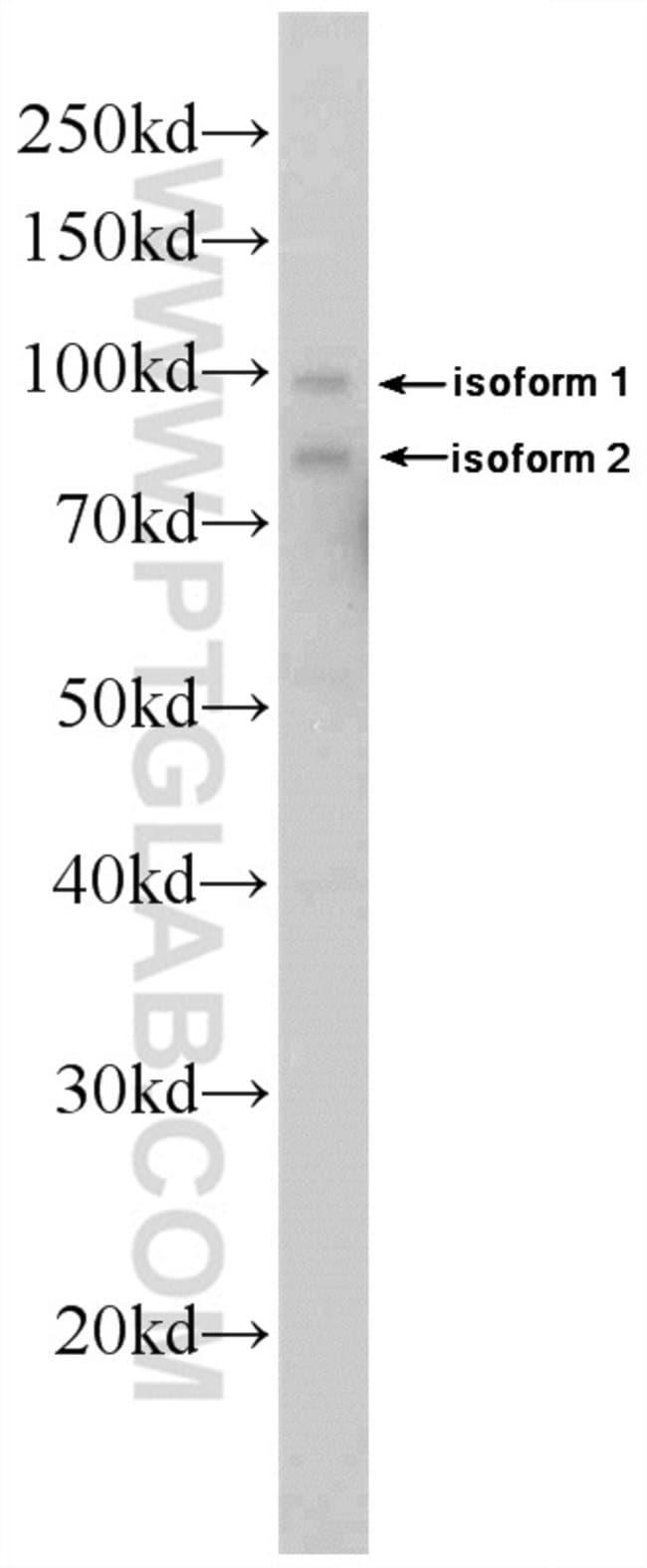 DDX21 Rabbit anti-Human, Mouse, Rat, Polyclonal, Proteintech 150 μL; Unconjugated Produkte