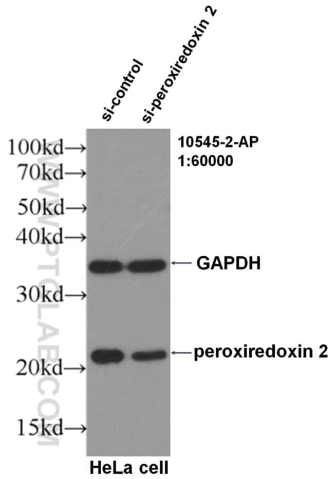 peroxiredoxin 2 Rabbit anti-Human, Mouse, Rat, Polyclonal, Proteintech 150 μL; Unconjugated Produkte