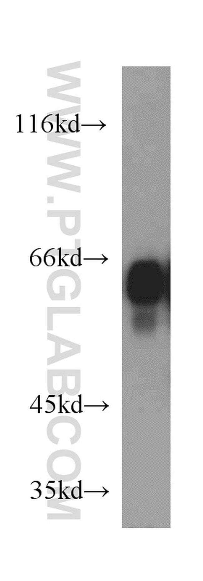 IA-2/PTPRN Rabbit anti-Human, Mouse, Rat, Polyclonal, Proteintech 150 μL; Unconjugated Produkte