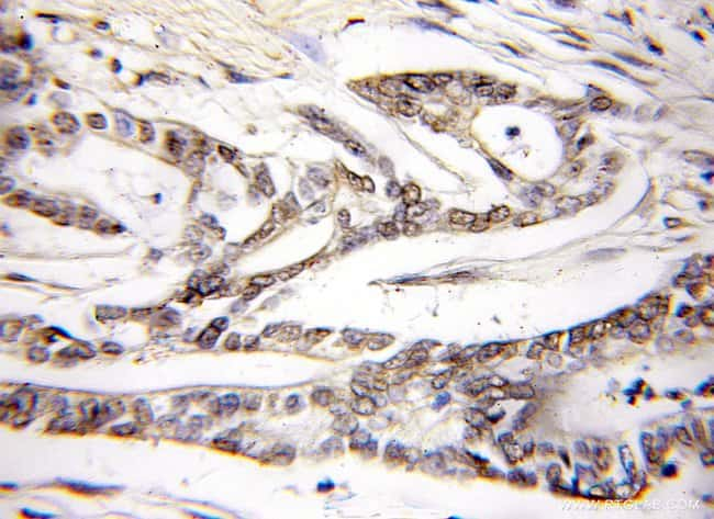 PLCD4 Rabbit anti-Human, Mouse, Rat, Polyclonal, Proteintech 150 μL; Unconjugated Produkte