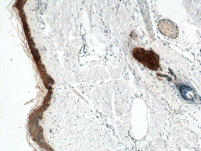 Cytokeratin 6A Rabbit anti-Human, Mouse, Rat, Polyclonal, Proteintech 20 μL; Unconjugated Ver productos