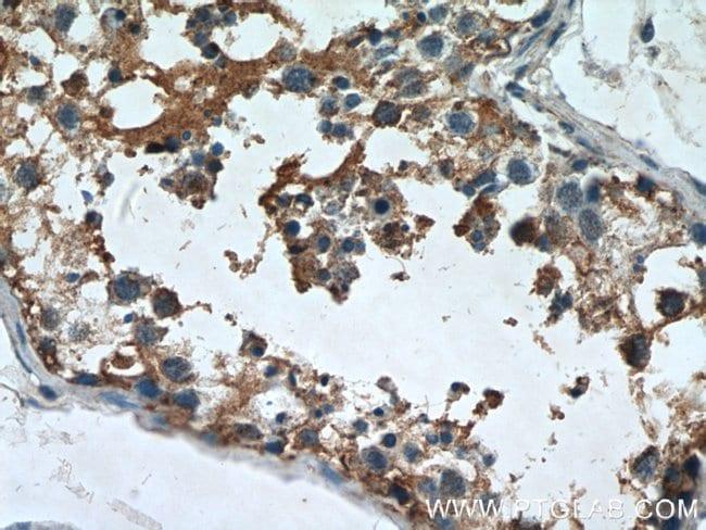 AGPAT1 Rabbit anti-Human, Mouse, Rat, Polyclonal, Proteintech 150 μL; Unconjugated Produkte