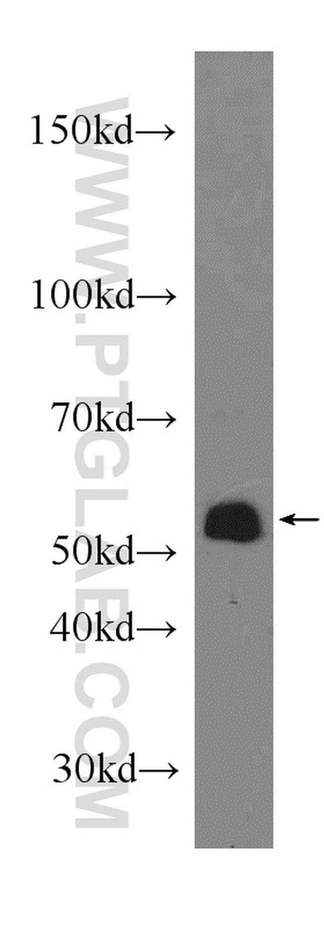 COX10 Rabbit anti-Human, Mouse, Rat, Polyclonal, Proteintech 150 μL; Unconjugated Produkte