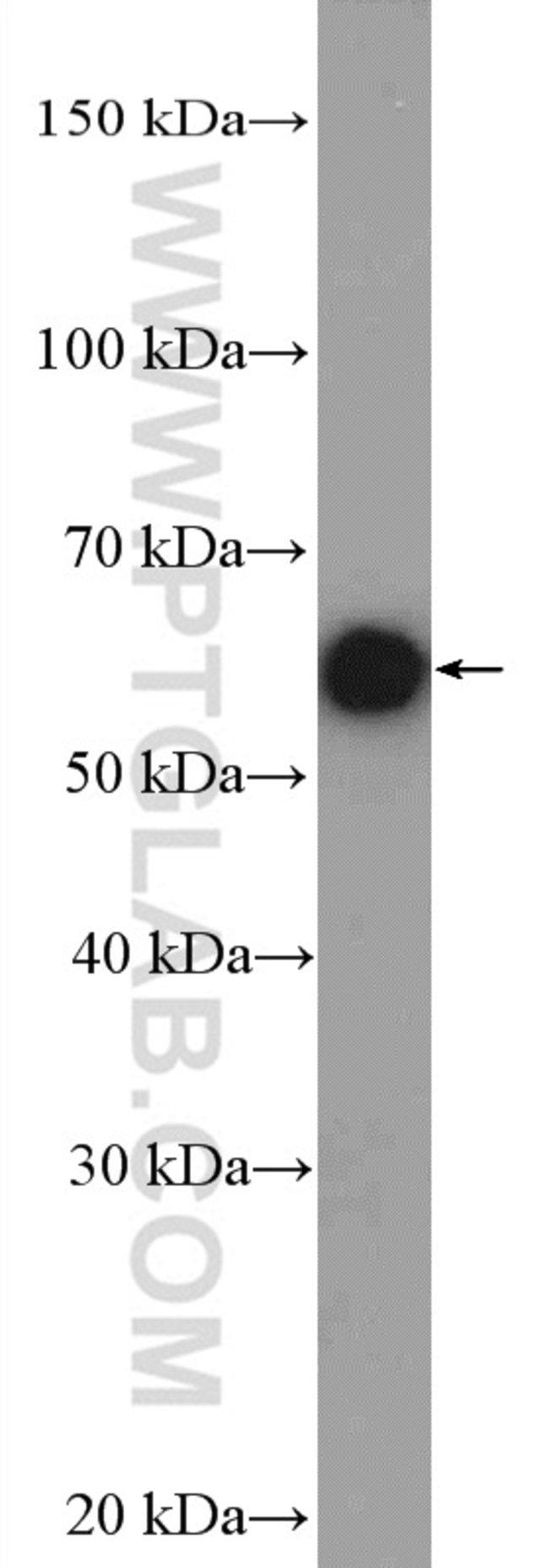 CHRNA1 Rabbit anti-Human, Mouse, Rat, Polyclonal, Proteintech 20 μL; Unconjugated Ver productos