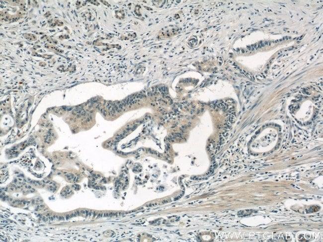 AP1M2 Rabbit anti-Human, Mouse, Rat, Polyclonal, Proteintech 20 μL; Unconjugated Ver productos