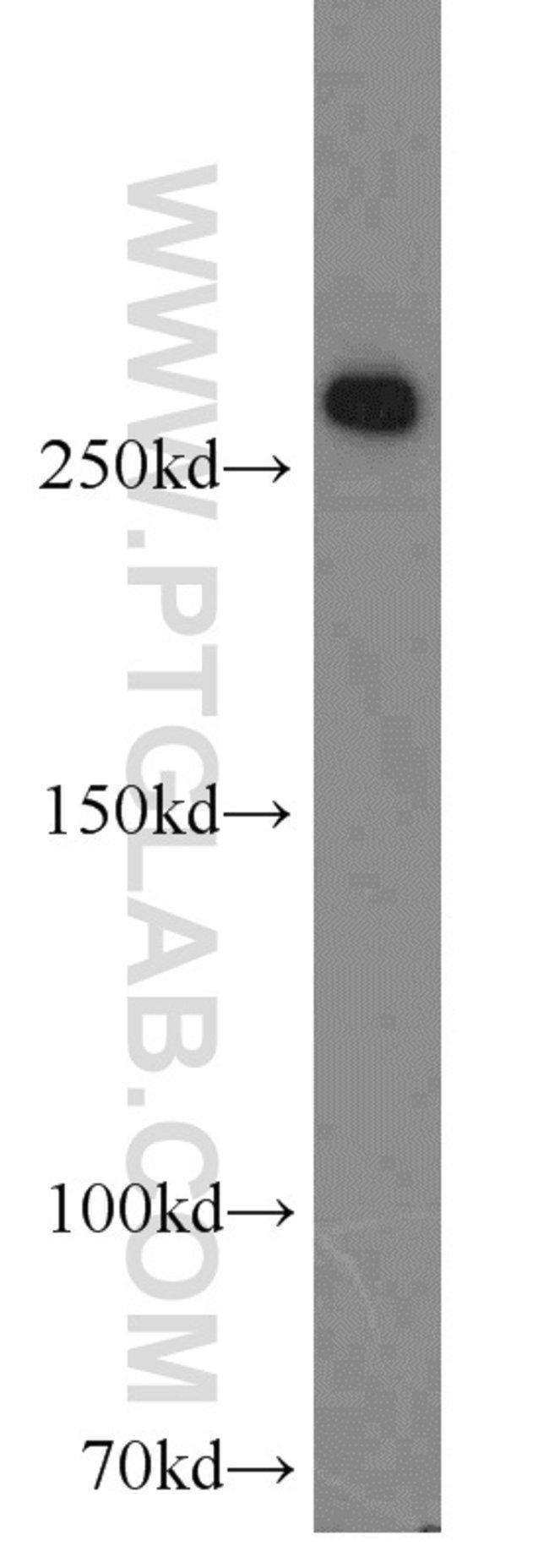 FASN Rabbit anti-Human, Mouse, Rat, Polyclonal, Proteintech 150 μL; Unconjugated Produkte