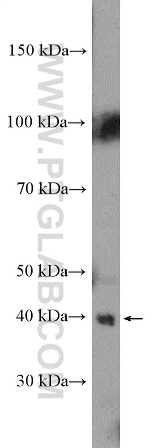 HIF1AN Rabbit anti-Human, Mouse, Rat, Polyclonal, Proteintech 150 μL; Unconjugated Produkte