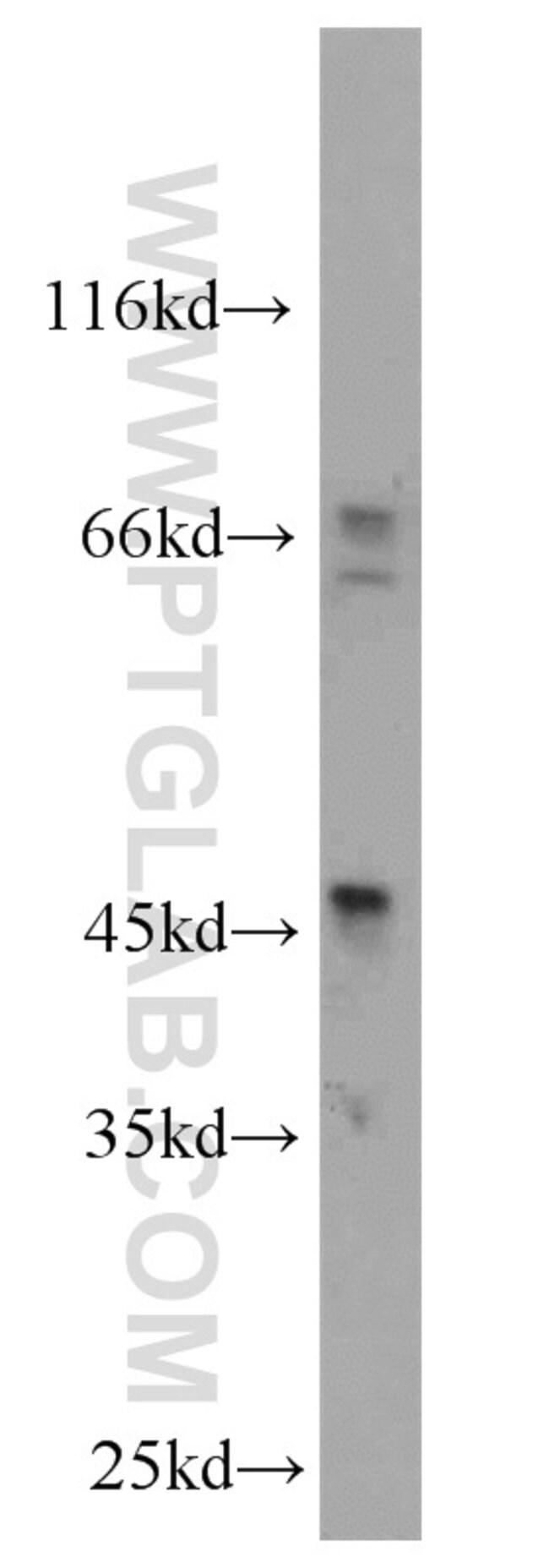 Inhibin beta A Rabbit anti-Human, Polyclonal, Proteintech 150 μL; Unconjugated Produkte