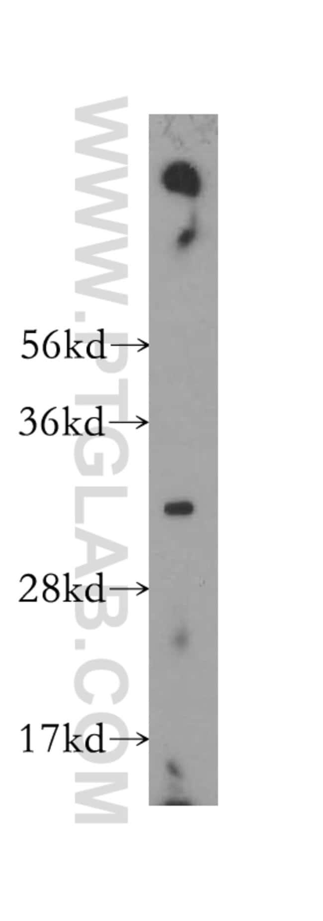 TNFSF13 Rabbit anti-Human, Polyclonal, Proteintech 150 μL; Unconjugated Produkte