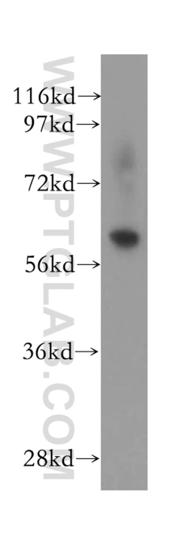 FBXO7 Rabbit anti-Human, Mouse, Polyclonal, Proteintech 150 μL; Unconjugated Produkte