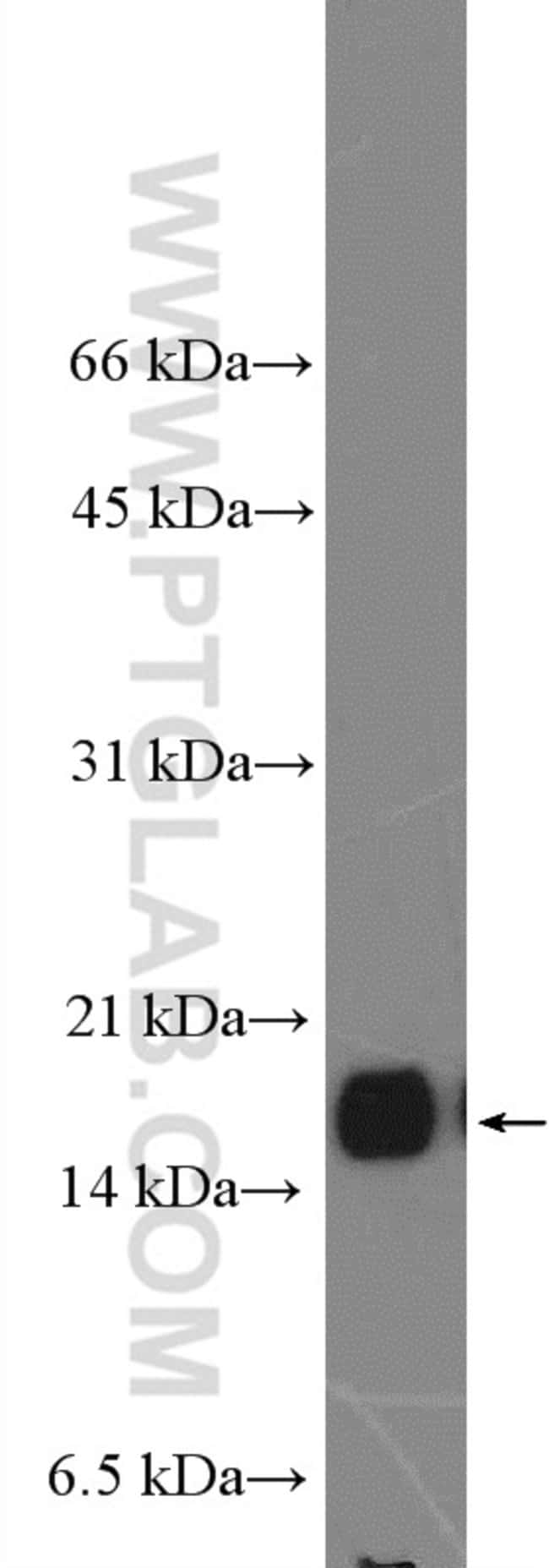 VAMP3/Cellubrevin Rabbit anti-Human, Mouse, Rat, Polyclonal, Proteintech 150 μL; Unconjugated Produkte