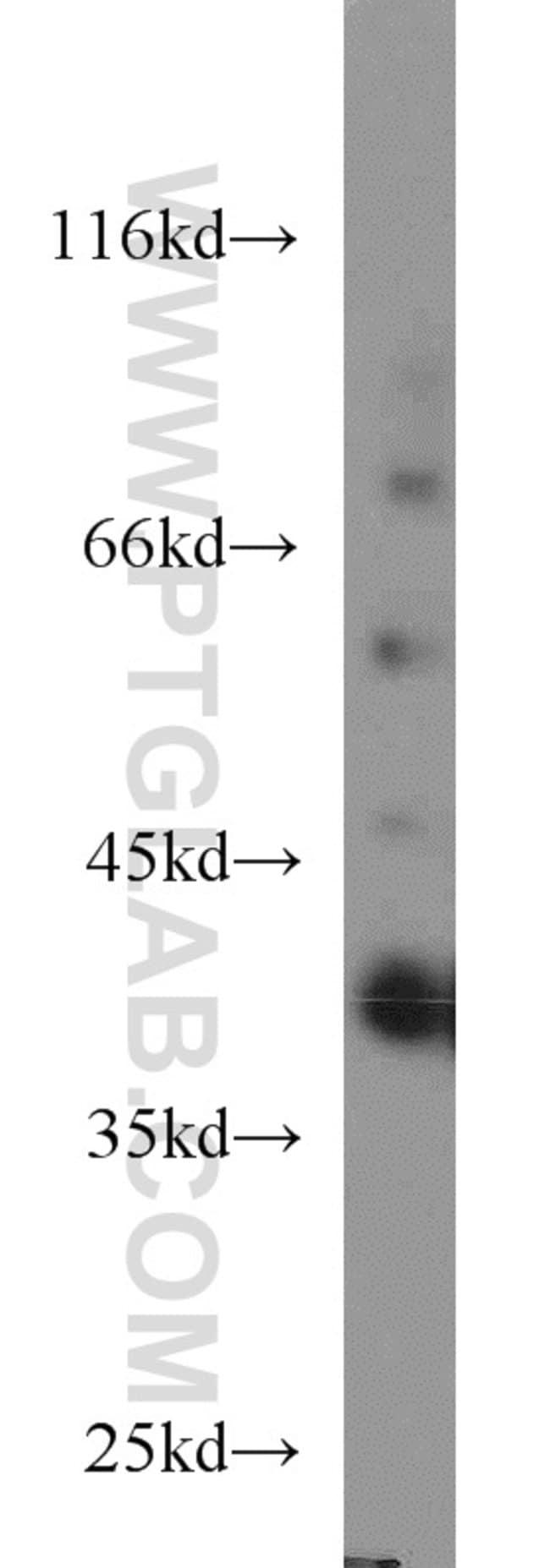 SIX1 Rabbit anti-Human, Mouse, Polyclonal, Proteintech 20 μL; Unconjugated Ver productos