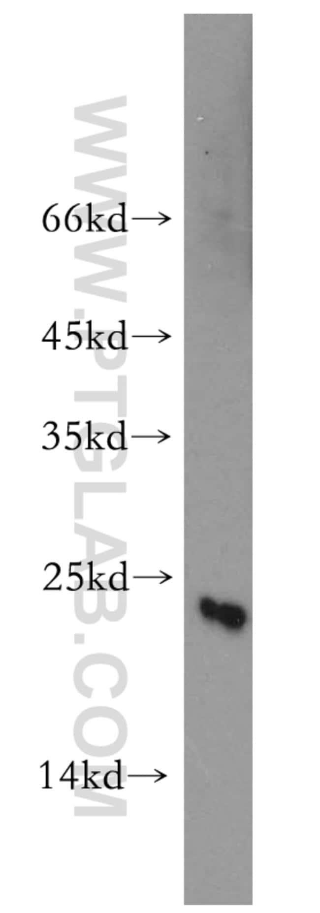 CGGBP1 Rabbit anti-Human, Mouse, Rat, Polyclonal, Proteintech 150 μL; Unconjugated Produkte
