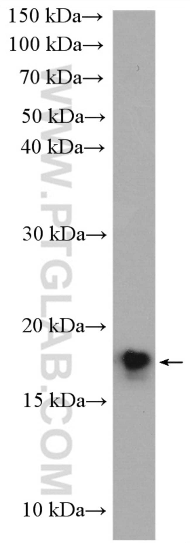 UBE2G2 Rabbit anti-Human, Mouse, Rat, Polyclonal, Proteintech 20 μL; Unconjugated Ver productos
