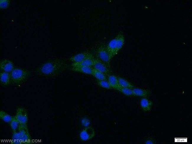 MRE11 Rabbit anti-Human, Mouse, Rat, Polyclonal, Proteintech 150 μL; Unconjugated Produkte