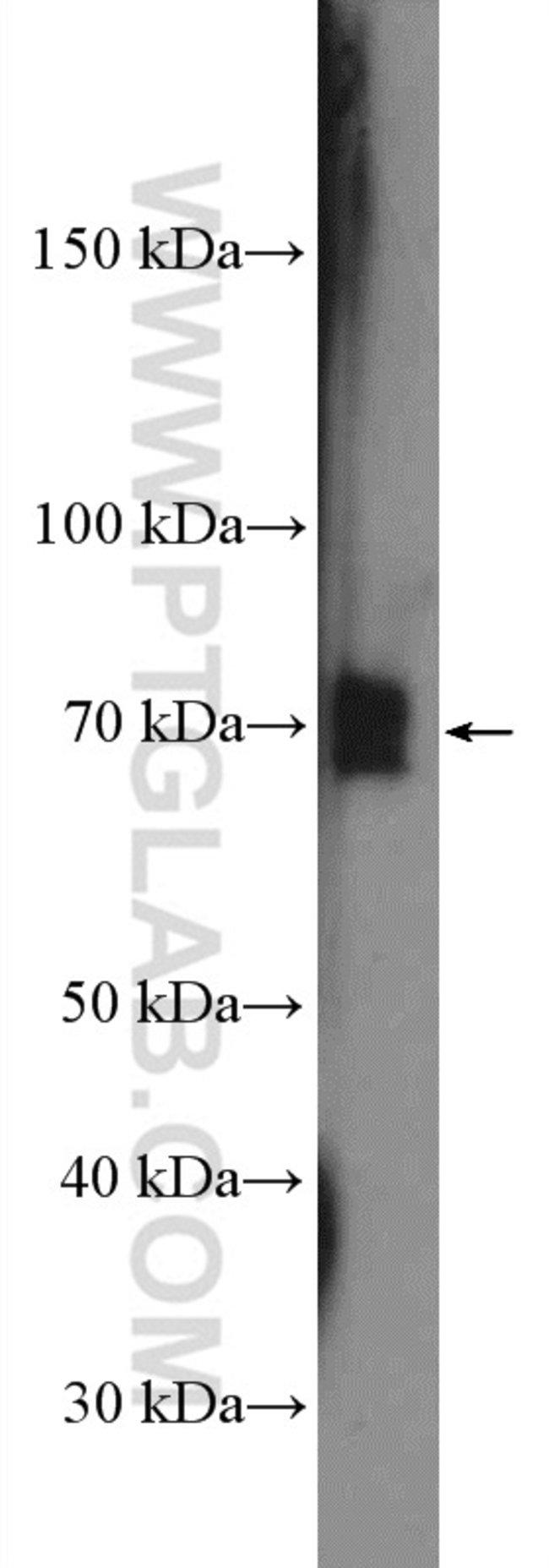 p65/RELA Rabbit anti-Human, Mouse, Porcine, Rat, Polyclonal, Proteintech 20 μL; Unconjugated Ver productos