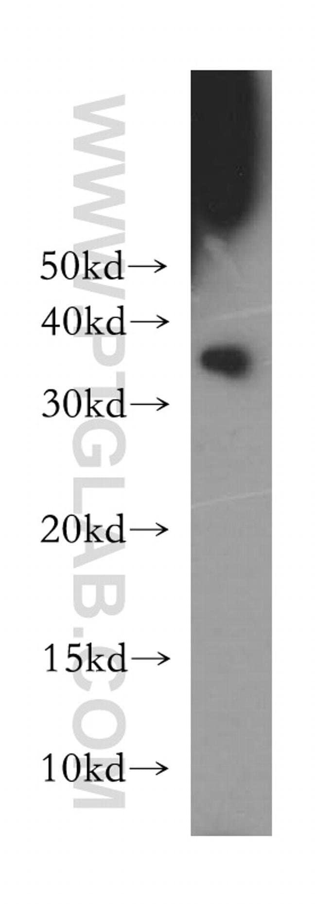 CDK1 Rabbit anti-Human, Polyclonal, Proteintech 20 μL; Unconjugated Ver productos