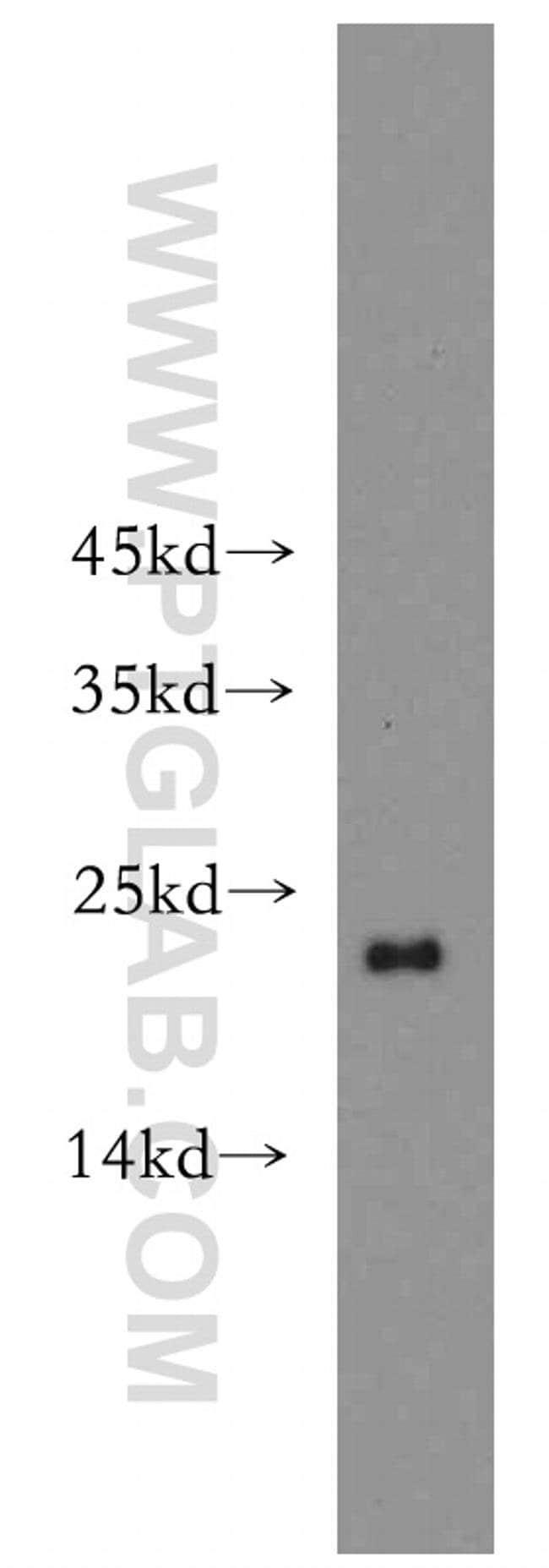 ARF1 Rabbit anti-Human, Mouse, Non-human primate, Rat, Polyclonal, Proteintech 20 μL; Unconjugated Ver productos