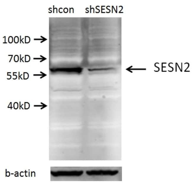 Sestrin 2 Rabbit anti-Human, Mouse, Rat, Polyclonal, Proteintech 150 μL; Unconjugated Produkte