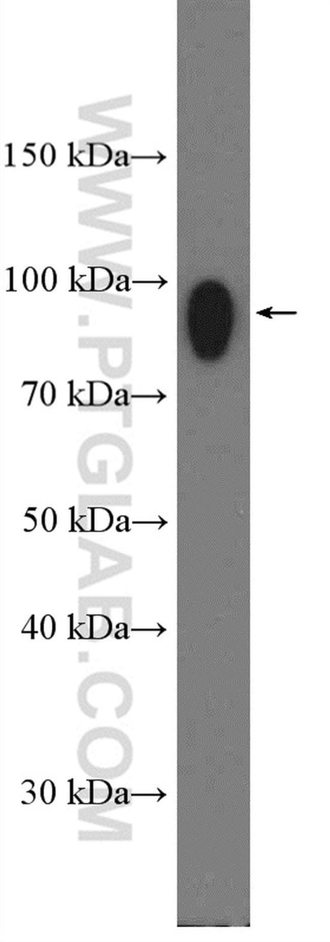 IFNGR1 Rabbit anti-Human, Polyclonal, Proteintech 20 μL; Unconjugated Ver productos