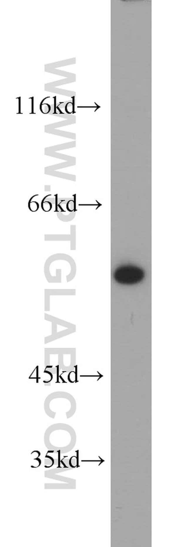 KPNA2 Rabbit anti-Human, Mouse, Rat, Polyclonal, Proteintech 150 μL; Unconjugated Produkte