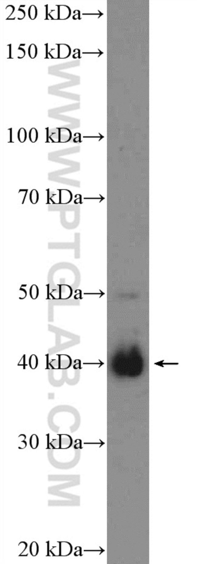 BMI1 Rabbit anti-Human, Mouse, Polyclonal, Proteintech 20 μL; Unconjugated Ver productos