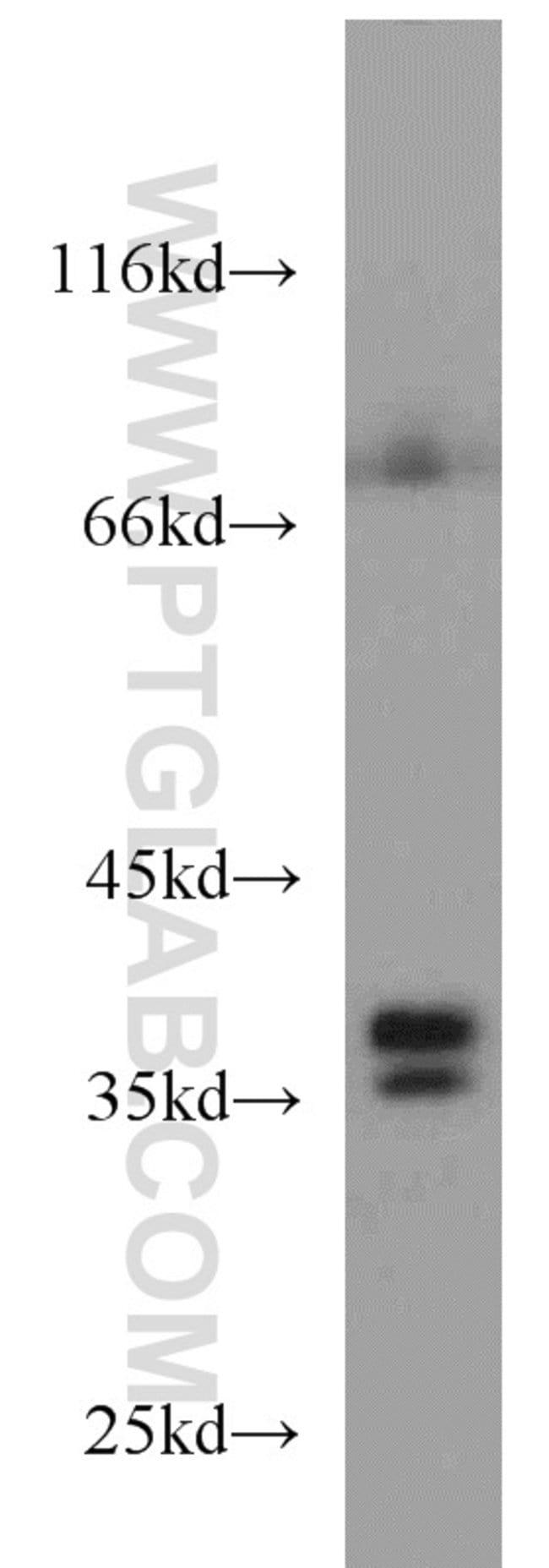 DNAJB2 Rabbit anti-Human, Mouse, Rat, Polyclonal, Proteintech 20 μL; Unconjugated Ver productos