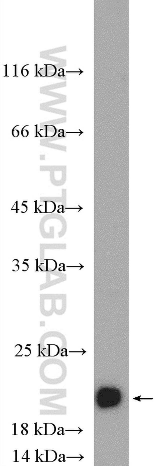 alpha-synuclein Rabbit anti-Human, Mouse, Rat, Polyclonal, Proteintech 150 μL; Unconjugated Produkte