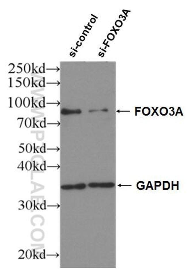 FOXO3A Rabbit anti-Human, Mouse, Rat, Polyclonal, Proteintech 20 μL; Unconjugated Ver productos