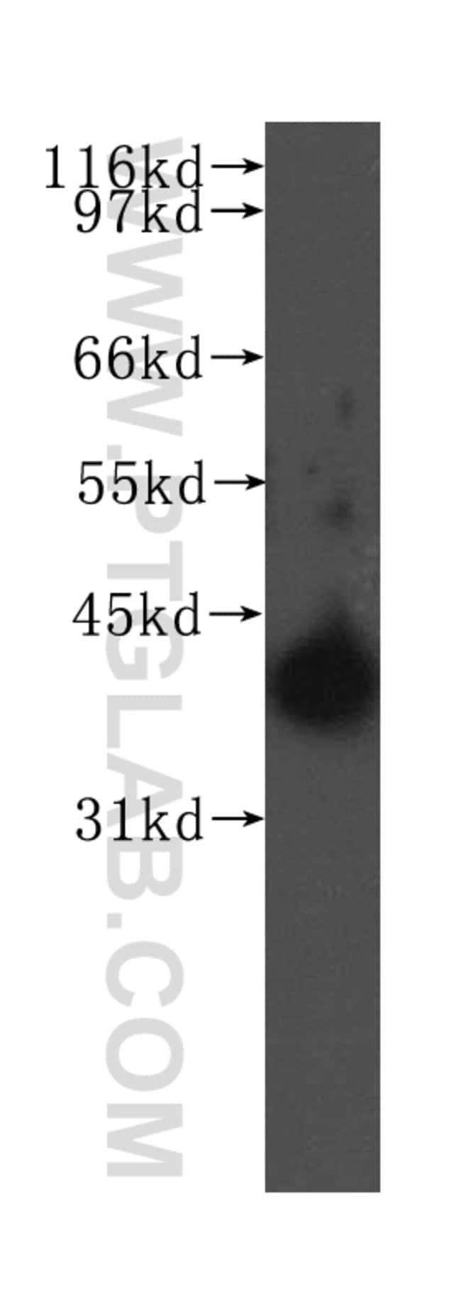 PTGES2 Rabbit anti-Human, Mouse, Rat, Polyclonal, Proteintech 150 μL; Unconjugated Ver productos