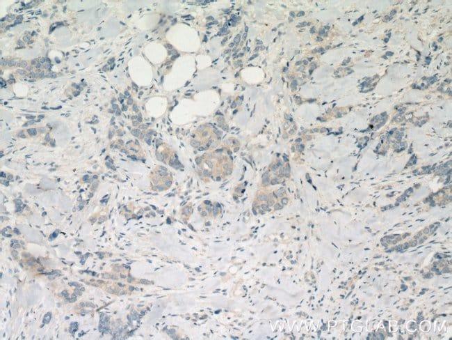 CNKSR1 Rabbit anti-Human, Polyclonal, Proteintech 20 μL; Unconjugated Produkte