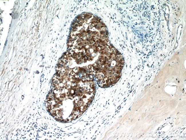 CXCL13/BCA1 Rabbit anti-Human, Polyclonal, Proteintech 150 μL; Unconjugated Ver productos