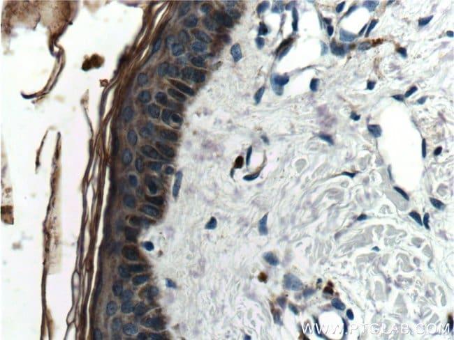 Cathepsin L Rabbit anti-Human, Polyclonal, Proteintech 150 μL; Unconjugated Ver productos
