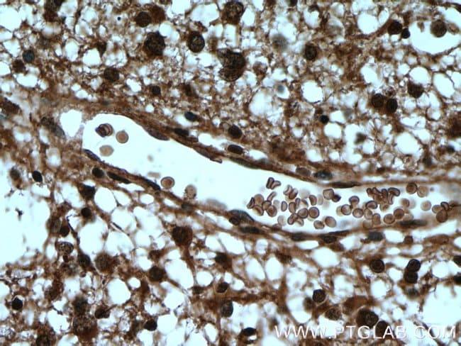 DCUN1D1 Rabbit anti-Human, Mouse, Rat, Polyclonal, Proteintech 150 μL; Unconjugated Ver productos
