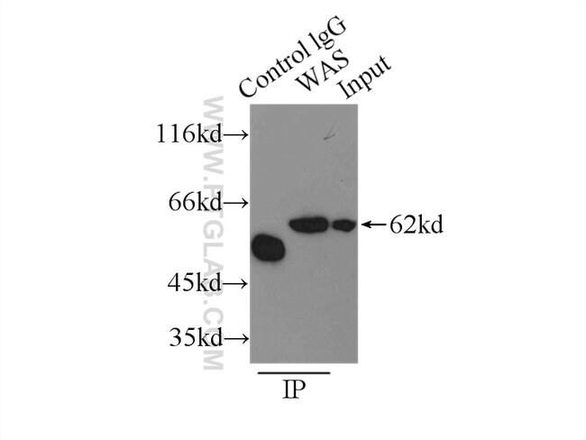 WASP Rabbit anti-Human, Mouse, Rat, Polyclonal, Proteintech 150 μL; Unconjugated Ver productos